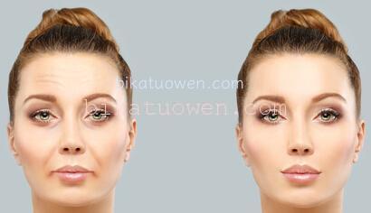 シワ たるみ シミ 毛穴 ほうれい線 クスミ 消す 効く 化粧品 効果高い成分