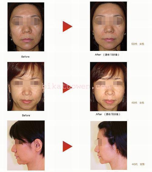シワ たるみ シミ 毛穴 ほうれい線 くすみ おすすめの効果が高い若返り化粧品