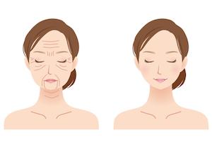 顔のシワ 消す 若返る 最先端美容法
