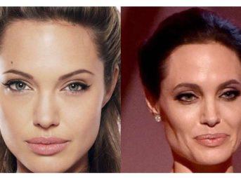 顔 骨格 老化 崩 老け顔 対策 方法